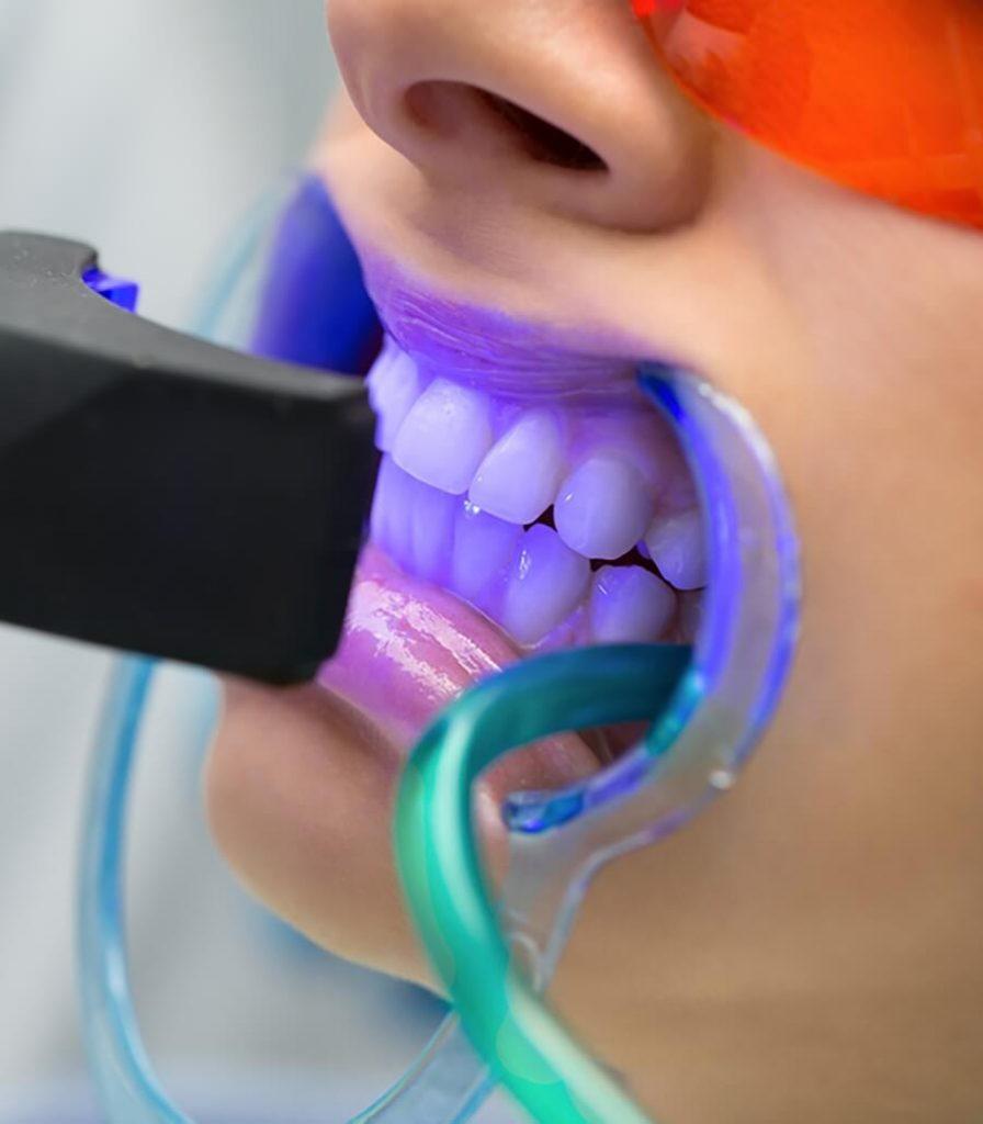Ankara-dis-beyazlatma-tavsiyesi-ve-fiyatlari-hitit-dental-dis-hekimi